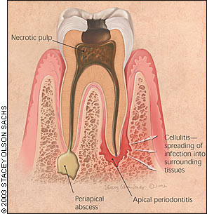 Abscesscartoon Caries Periapical Ray Of Teeth