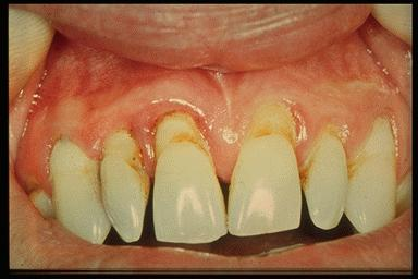 gingiva and tooth loss  gingiva and too...